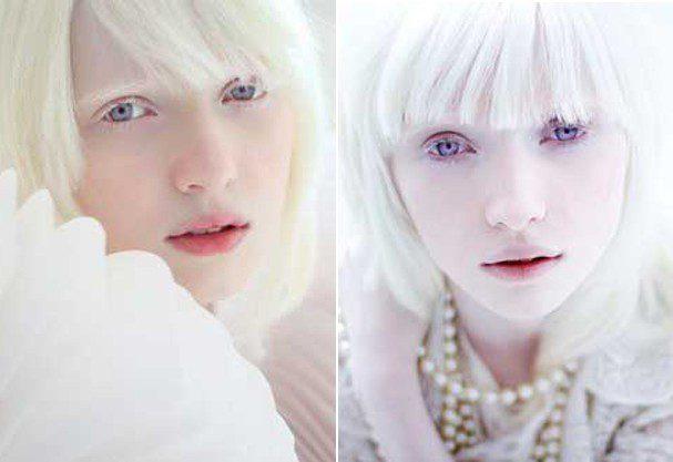 russa albina 2