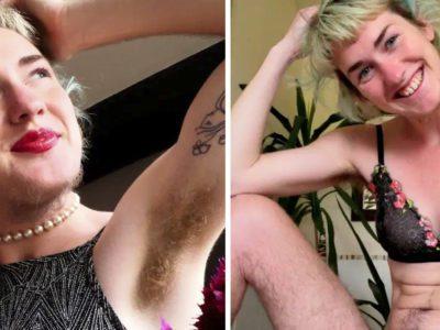 4 capa Dizem que pareco um homem diz mulher depois de parar completamente com a depilacao